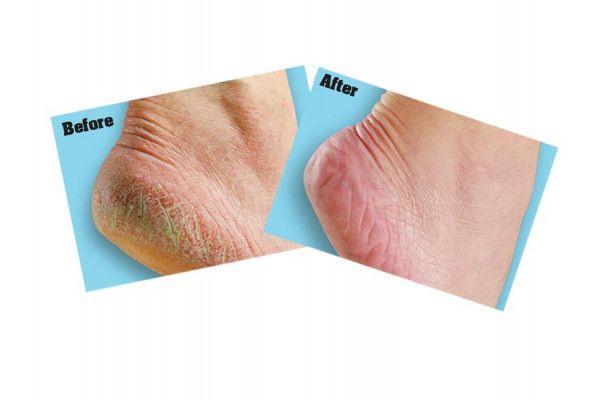 Gorilla Glue O'Keeffe's Healthy Feet Foot Cream, 85g Tube