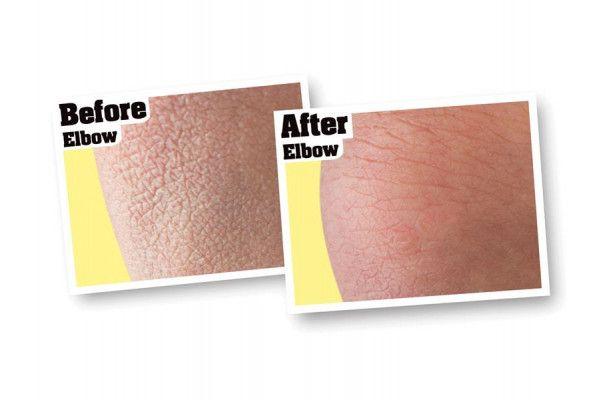 Gorilla Glue O'Keeffe's Skin Repair Body Lotion, 325ml Pump